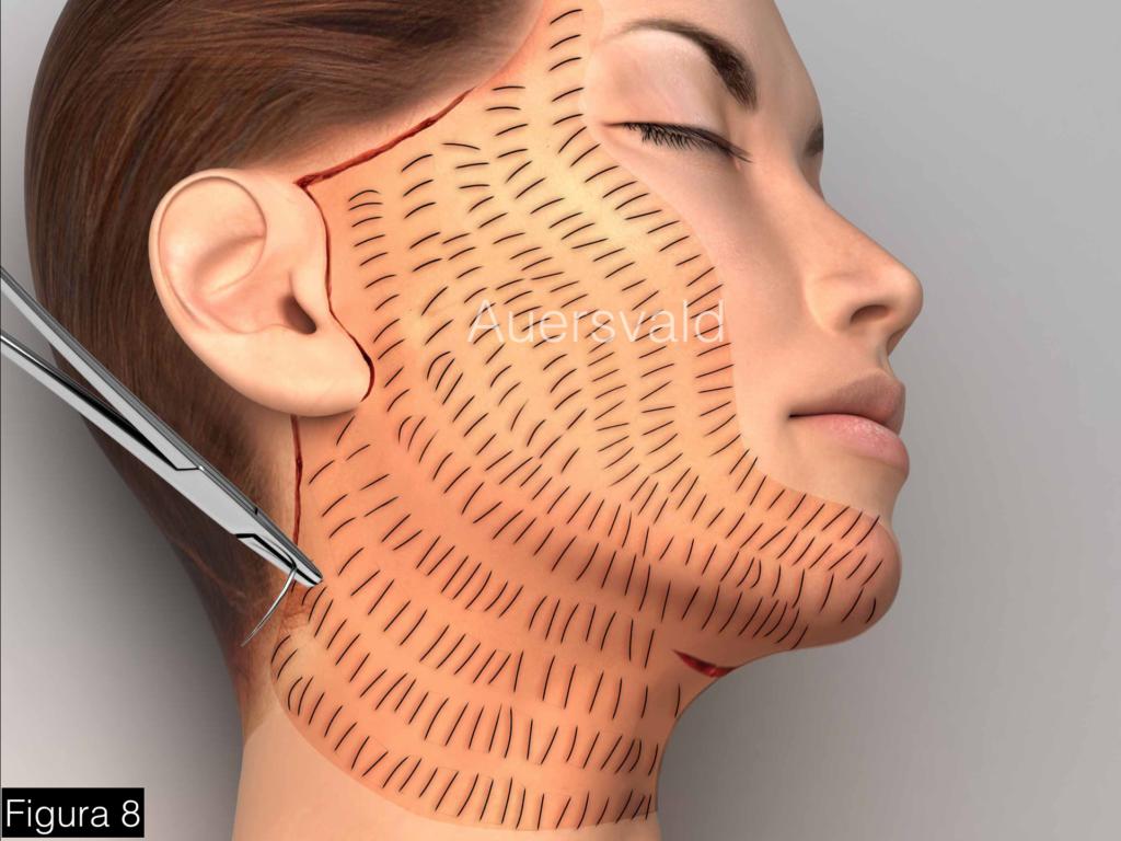 facelift com rede hemostatica