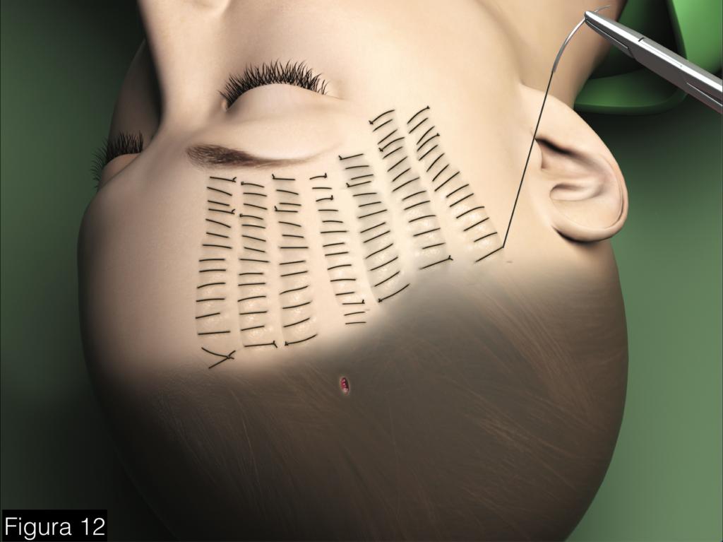 facelift com rede hemostatica - testa